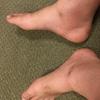 突然の右足の激痛