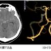 脳動脈解離の診療と若年性脳梗塞