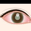 眼科定期検診と舌下免疫療法
