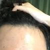 治療開始から3ヶ月1週目(2018.2.13) ※発毛の実感現れてきた