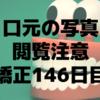歯列矯正146日目。広げすぎた?前歯の隙間を閉じてます。