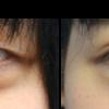ぼんやり重そうな目をパッと華やかなきれいな目にする。 LUCE式リッチダブル+目頭切開