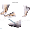 Hammer Toe Cause And Cure